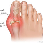 Cure for Gout – How to Avoid Gout and How to Cure using Home Remedies
