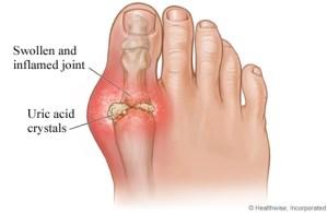 gout big toe - uric acid