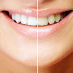 How to Get Whiter Teeth at Home (homemade remedies for whiter teeth)