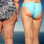 2 Natural Ways to Get Rid of Cellulite Patches Naturally Without Surgery