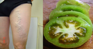 How to Treat and Cure Varicose Veins with Tomatoes