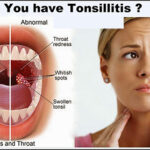 Recipe to Cure Tonsillitis | Get Rid of Sore Throat