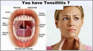 Recipe to Cure Tonsillitis