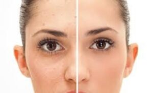 6 Natural Ways to Get Rid of Acne Scars Fast