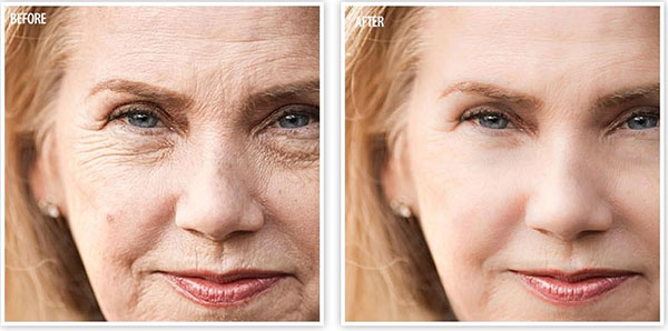 Regain Wrinkles Free Youthful Skin Back with HGH Releasers