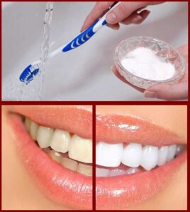 How to Whiten Teeth at Home with Baking Soda